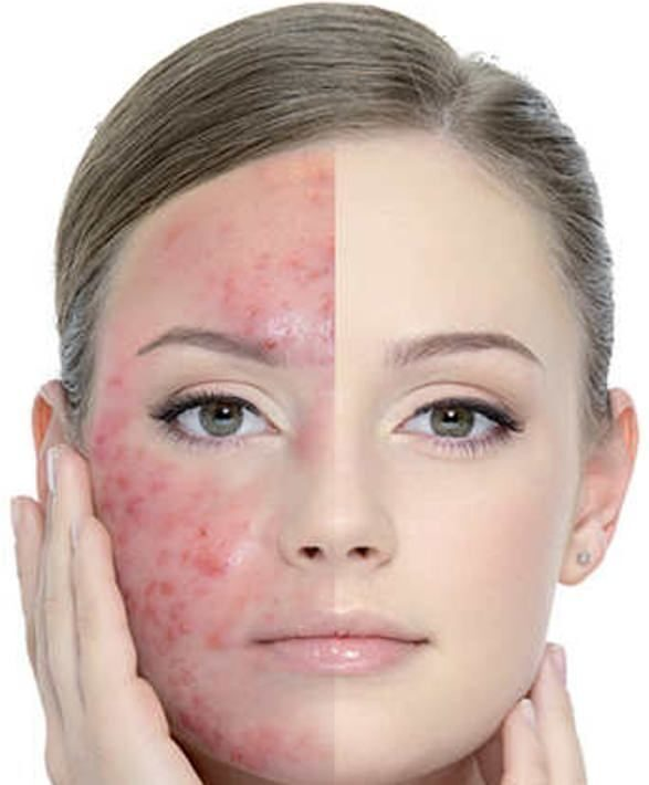 Acne – How to Reduce Acne at Home??